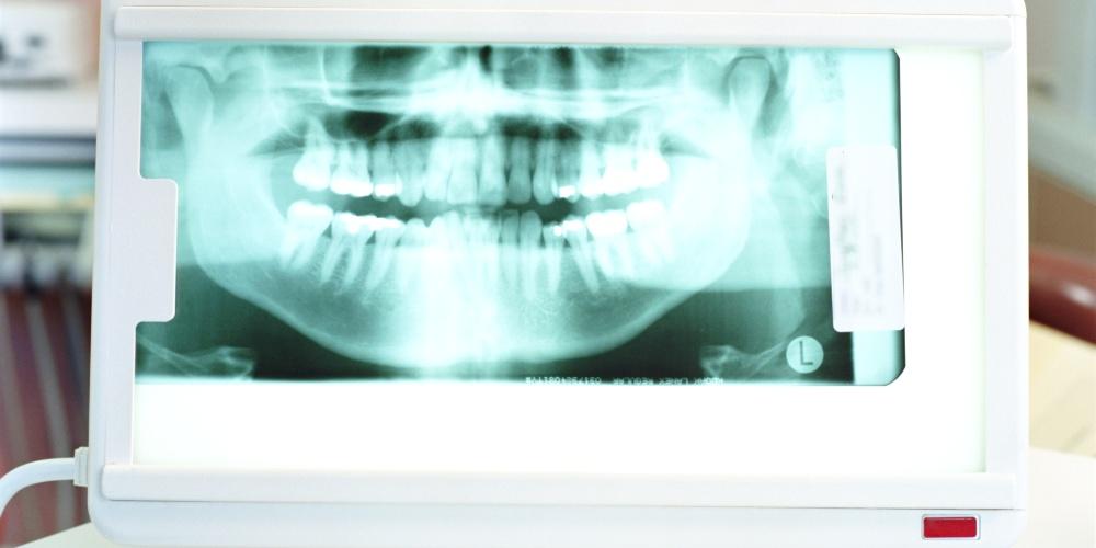 ortopantomografia_panoramica_studio_marrone_pescara