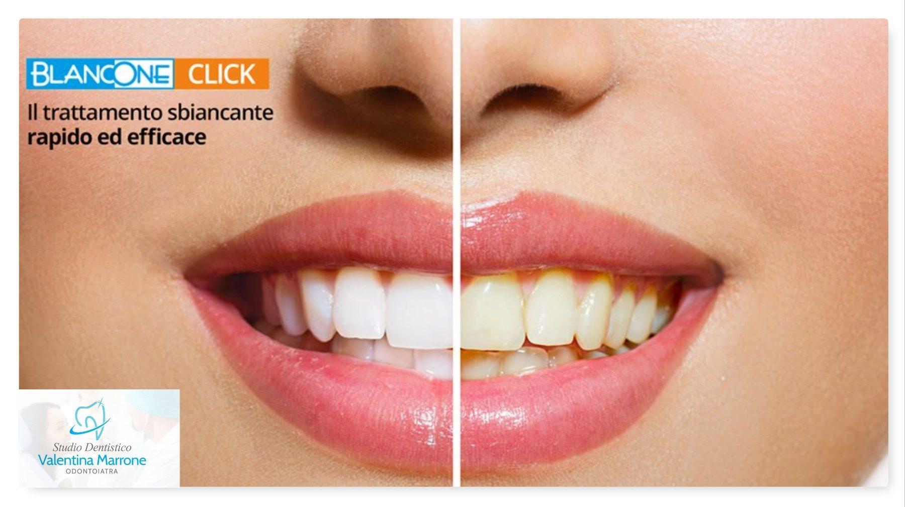 BlancOne il trattamento sbiancante sicuri che rispetta i tuoi denti