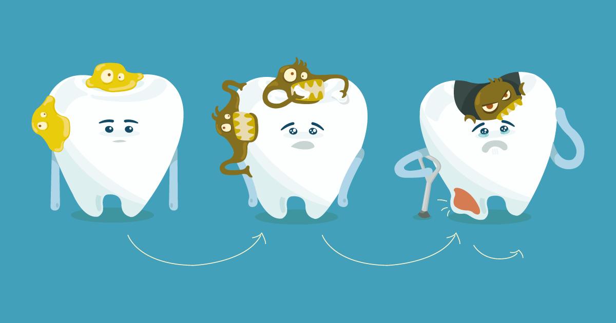 Come evitare carie nei bambini, la sigillatura dei molari nei bambini